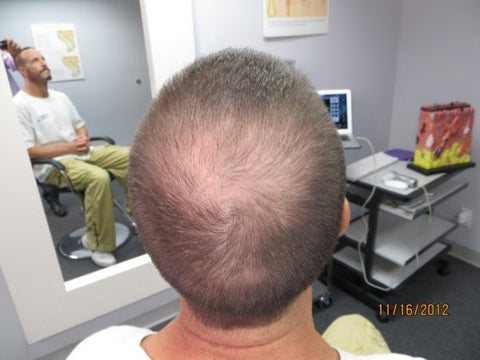 Men's Hair Regrowth Results DF1