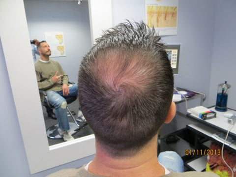 Men's Hair Regrowth Results DF2