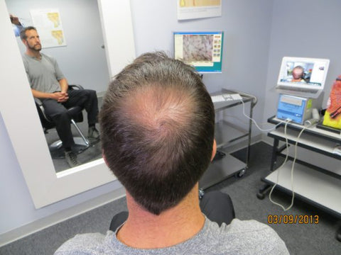 Men's Hair Regrowth Results DF3