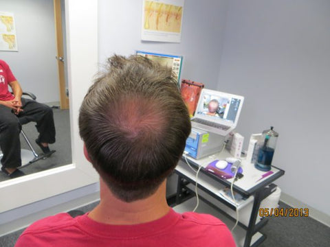 Men's Hair Regrowth Results DF4