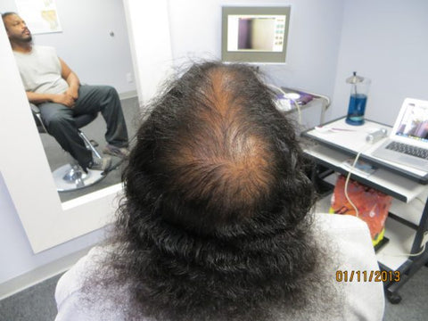 Men Hair Regrowth Results 7