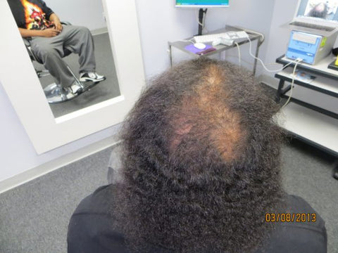 Men Hair Regrowth Results 8