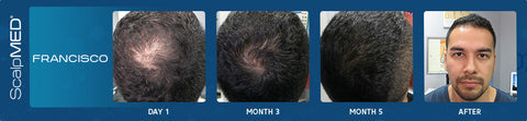 men's hair regrowth results