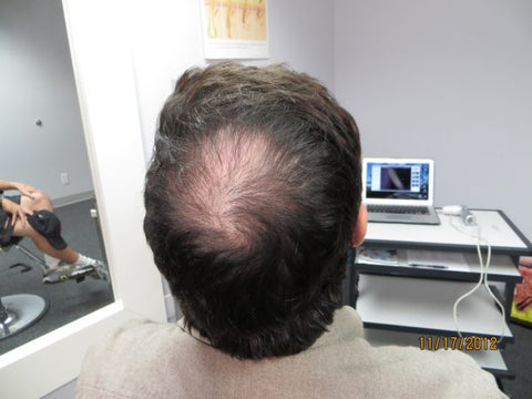 Men's Hair Regrowth Results FM1