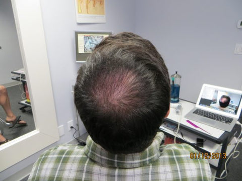 Men's Hair Regrowth Results FM2