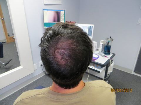 Men's Hair Regrowth Results FM4