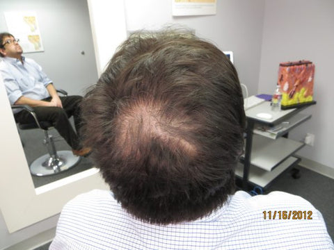 Men Hair Regrowth Results GC1