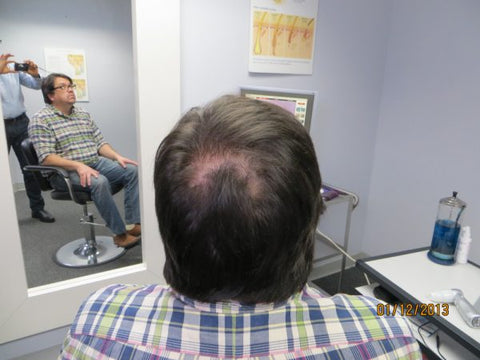 Men Hair Regrowth Results GC2