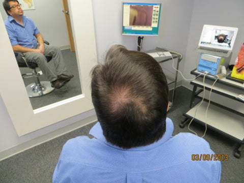 Men Hair Regrowth Results GC3
