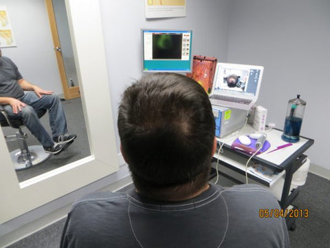 Men Hair Regrowth Results GC4