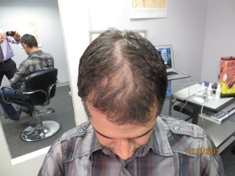 Men Hair Regrowth Results 2