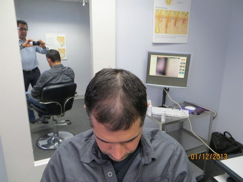Men Hair Regrowth Results 3