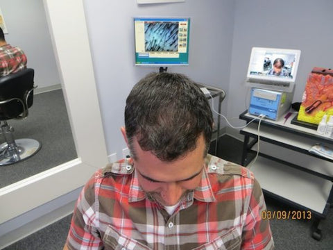 Men Hair Regrowth Results 4