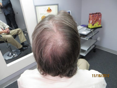 Men's Hair Regrowth Results KM1
