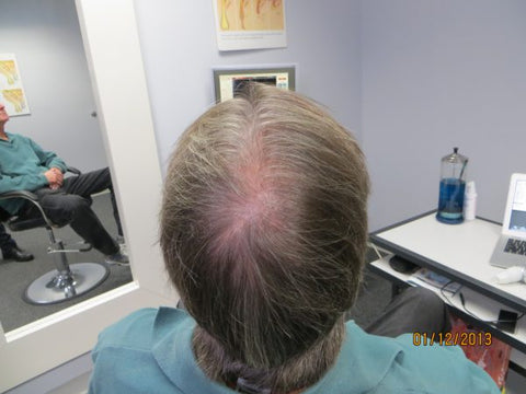 Men's Hair Regrowth Results KM2