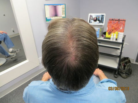 Men's Hair Regrowth Results KM3