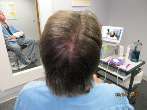 Men's Hair Regrowth Results KM4