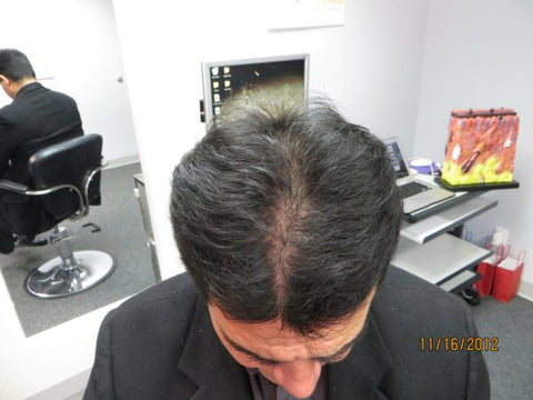 Men's Hair Regrowth Results XM1