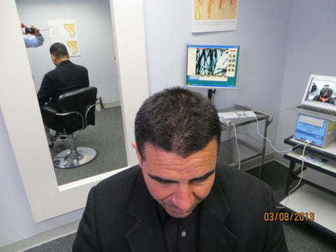 Men's Hair Regrowth Results XM3