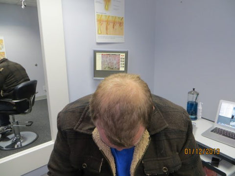 Men Hair Regrowth Results ZD2