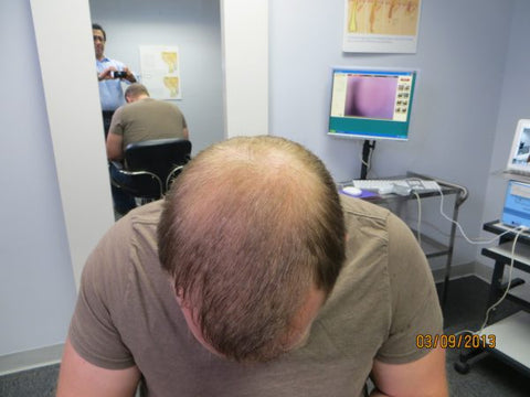 Men Hair Regrowth Results ZD3