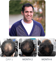 PATENTED HAIR REGROWTH SYSTEM FOR MEN For Men Scalp Med