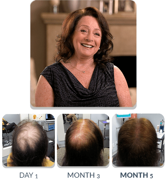 PATENTED HAIR REGROWTH SYSTEM FOR WOMEN For Women Scalp Med