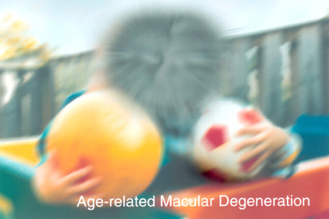 What does Macular Degeneration look Like?
