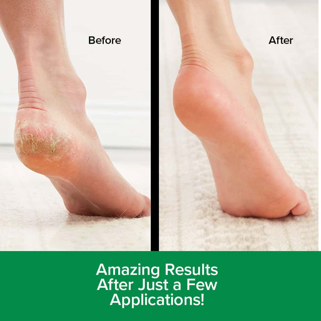 Hempvana Heel Tastic before and after amazing results after just a few applications