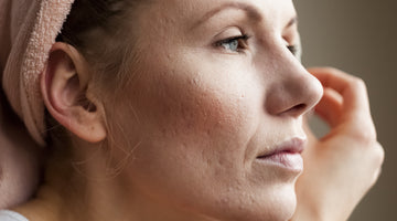 Adult acne and how to deal with it permanently!