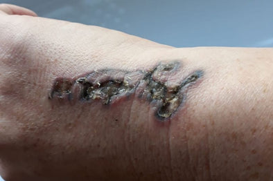This is the horrifying reality of what happens when laser tattoo removal 'goes wrong'