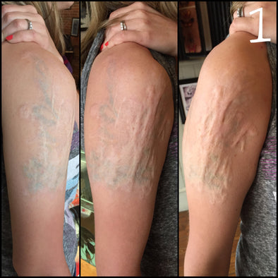 Tattoo Removal: The Cost, Pain, Before & After Results