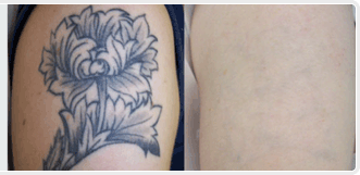 flower tattoo removal cream