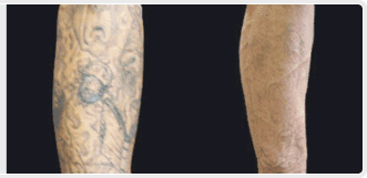 sleeve tattoo removal cream