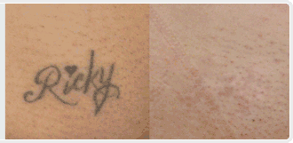 ricky tattoo removal cream