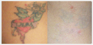 9 Months Supply Of Tattoo Removal Cream - thINK Tattoo Removal Cream