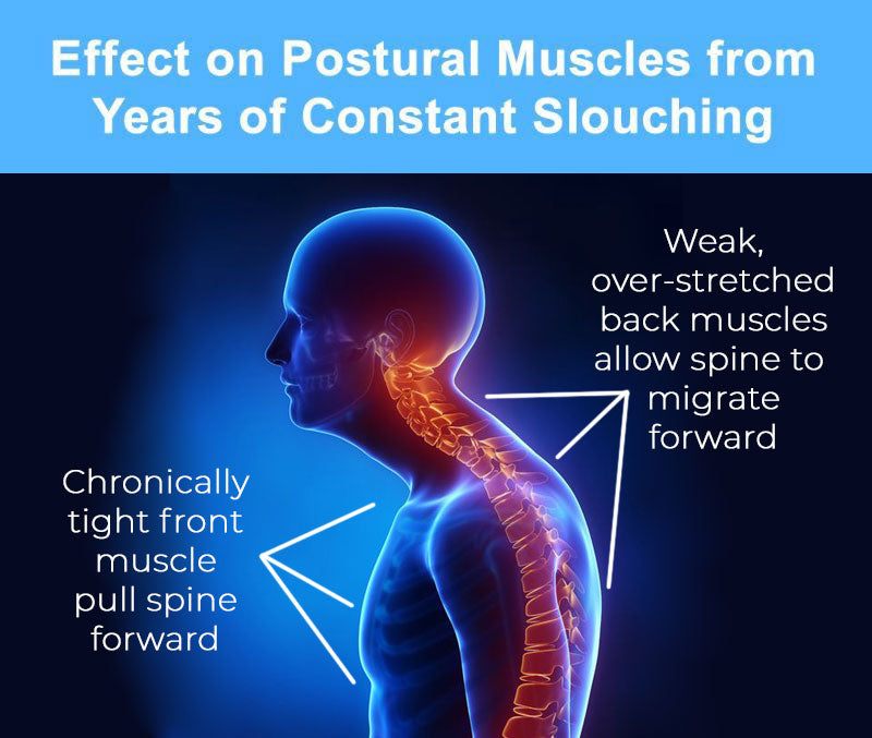 Effects On Posture