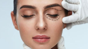 non-surgical eye lift remove undereye bags