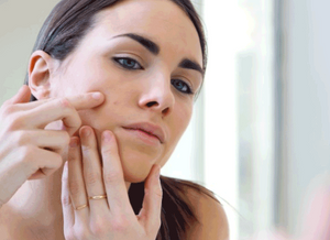 5 Ways to Fade and Prevent Acne Scars