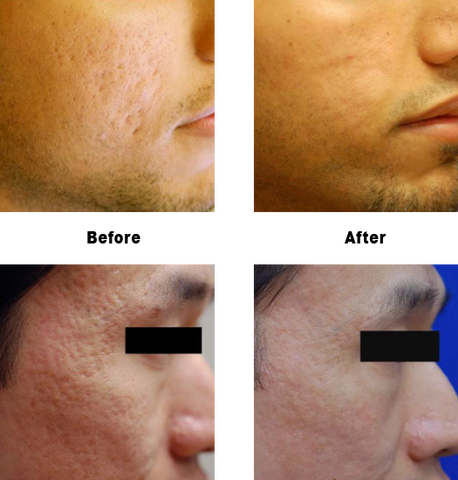 Acne Scarring with dr. lin before and afters