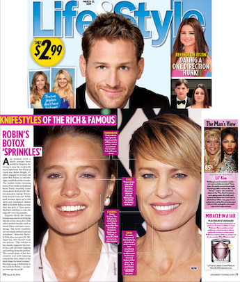 Life and Style Magazine Robin Wright Botox
