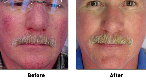 laser vein removal before and afters with dr. lin
