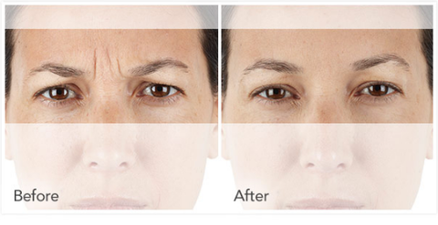 xeomin for wrinkles
