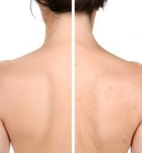Body Acne Kit | Clear Backne and Shoulder Acne | Clear Back Acne Fast
