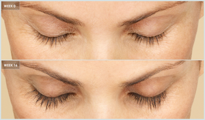 California Residents Only: Latisse Eyelash Solution + Teledermatology Visit - Dr. Lin Skincare