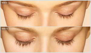 Latisse Eyelash Solution + Teledermatology Visit
