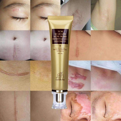Image of Acne Scar Remover Cream