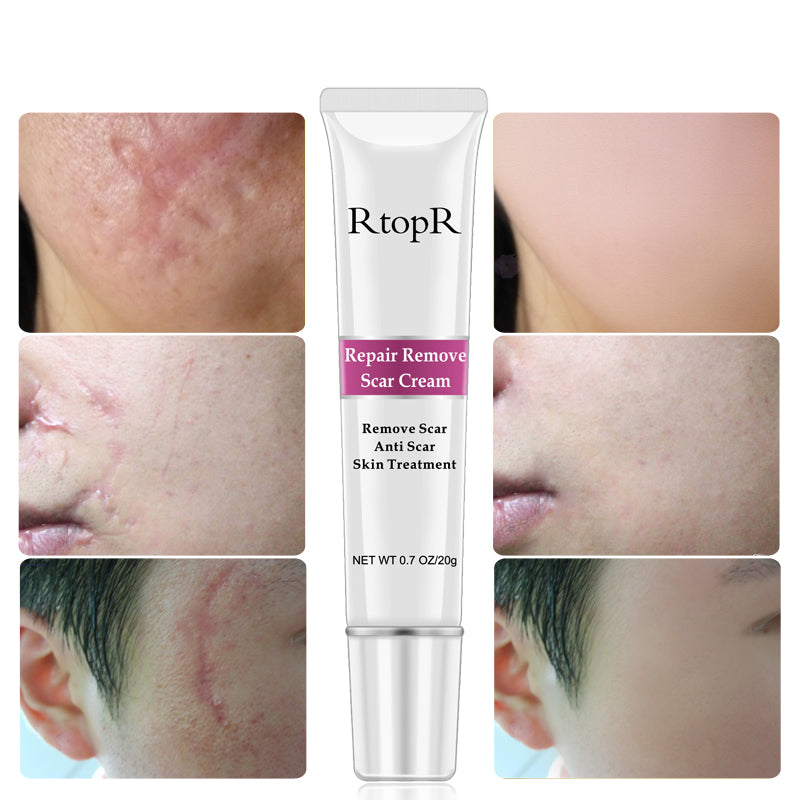 Scar Removal Cream Ubsia