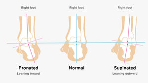 shoes that are good for your feet and back - body alignment - foot alignment