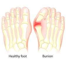 Common foot problems - bunions